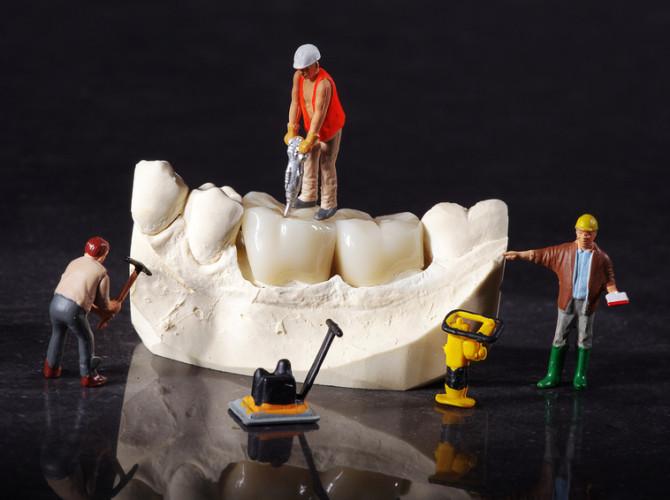 3 Miniatur Arbeiter auf Zahn Ersatz