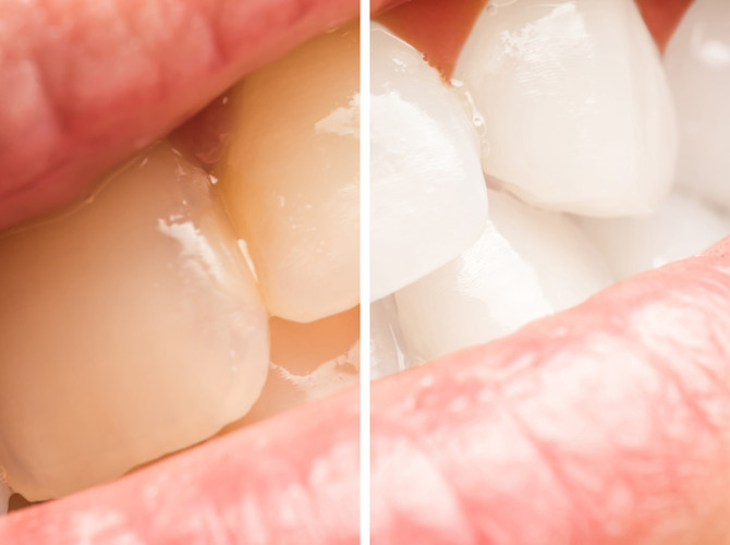 Woman Teeth Before And After Dentist Clinic Whitening Procedure