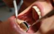 dentalcare-10_leczenie2